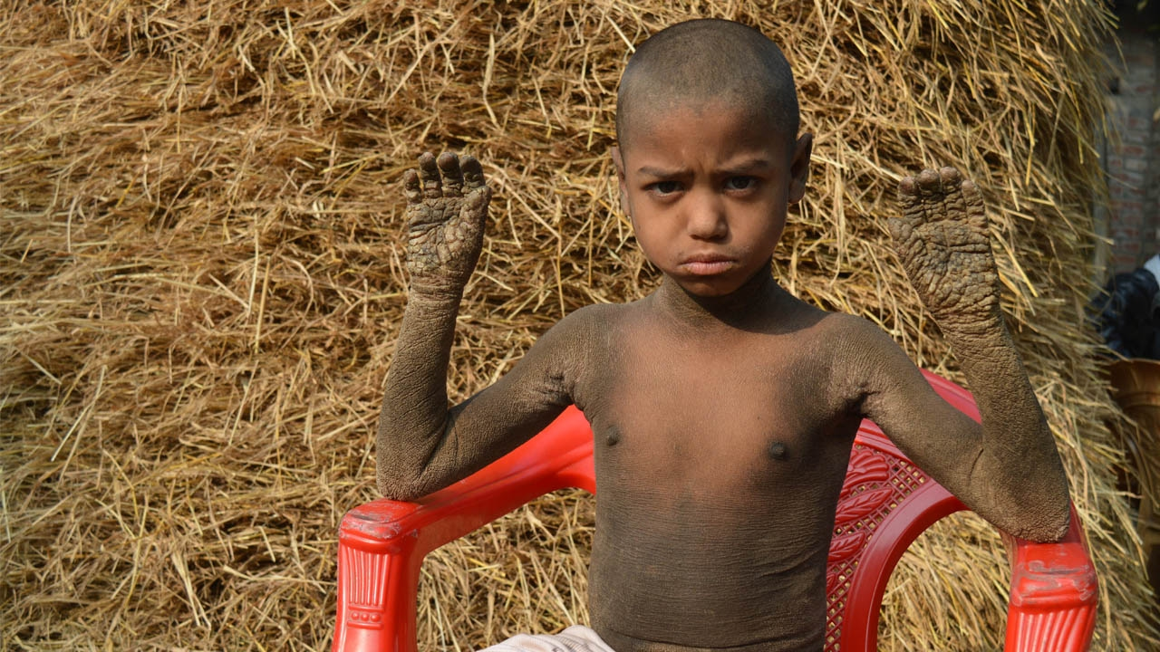 Bangladeshi Child Turning Into Stone