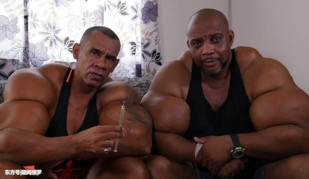 巴西两兄弟通过注射化学药剂让他们变肌肉男,家人们都很担心!