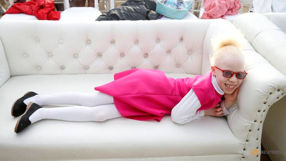 Kenyan charity holds pageant to affirm dignity of people with albinism