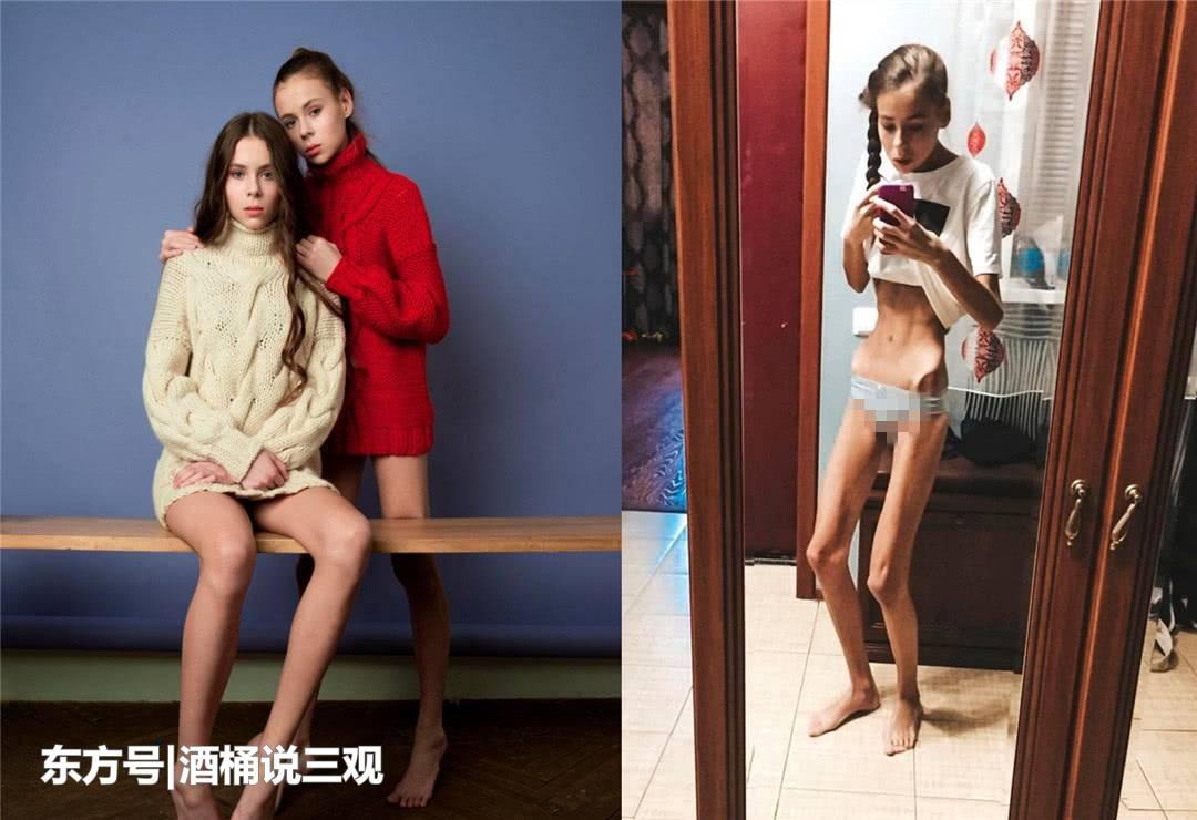 14岁双胞胎模特为减肥患上厌食症 结果双双住进重症监护室