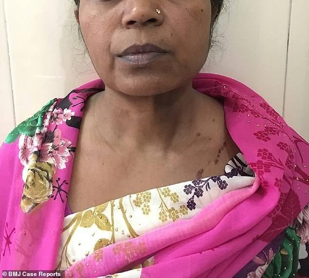 印度妇女切除了近9斤重肿瘤
