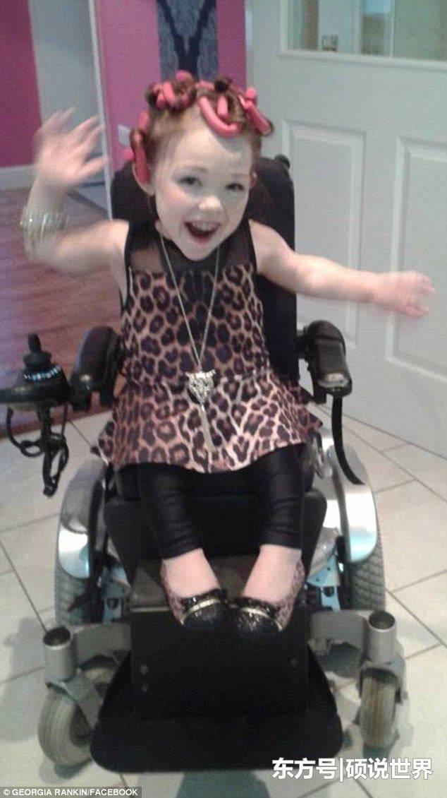 英国最小女孩身高78厘米 每天浑身疼痛不止却笑对生活
