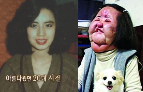 """韩国整容致毁容""""风扇大妈""""去世 整容前照片公开"""