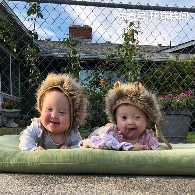 丈夫结扎前再试一次拼女儿,妻子怀上唐氏双胞胎女儿,结局很暖