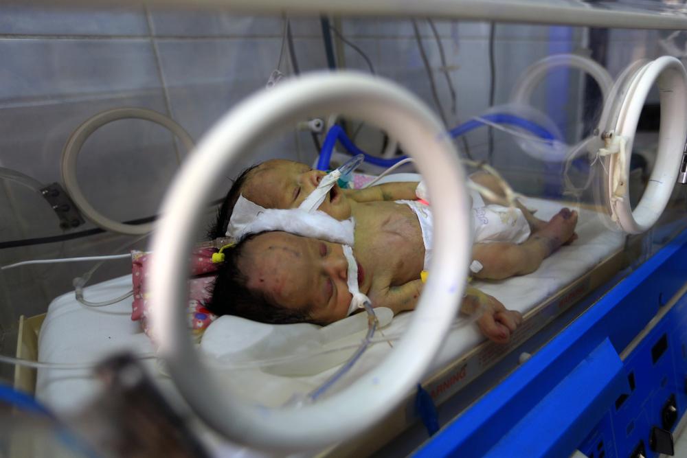 Yemeni conjoined twins die in blockaded Sanaa, say rebels