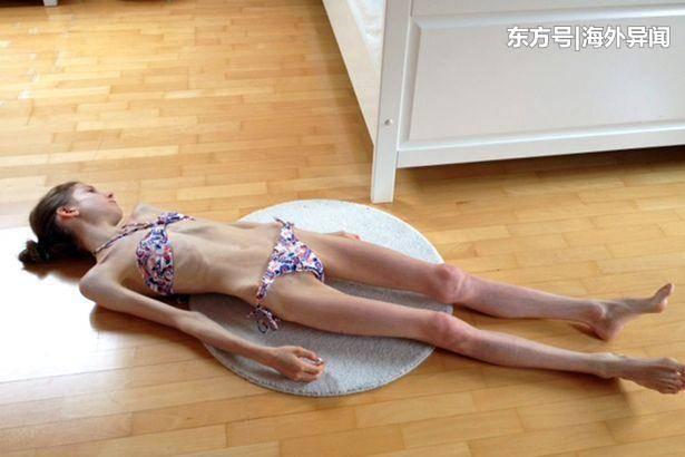少女厌食瘦到22公斤, 是爱情帮她恢复健康