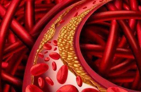 晚餐吃得太晚,不利于控制血糖?营养师:对血糖、血压和睡眠不利