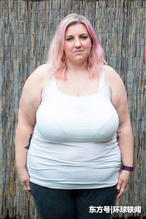 因担心哺乳令孩子窒息, 英国女子希望缩小胸部