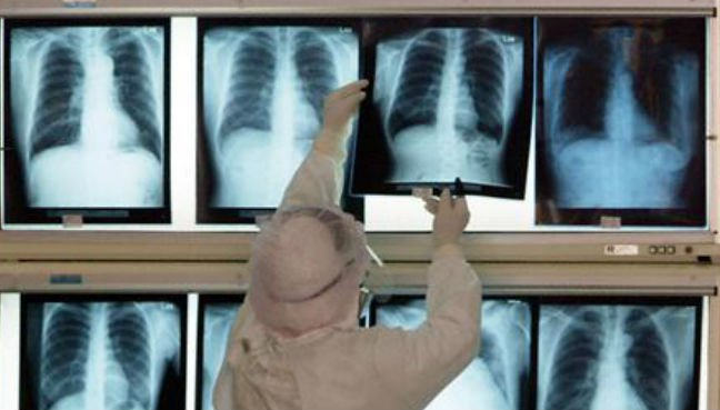 20,000 medical records of Malaysians found to be freely available online