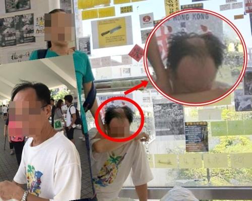 马鞍山「撕纸」中年汉疑遭人淋泼液体 妻被抢电话