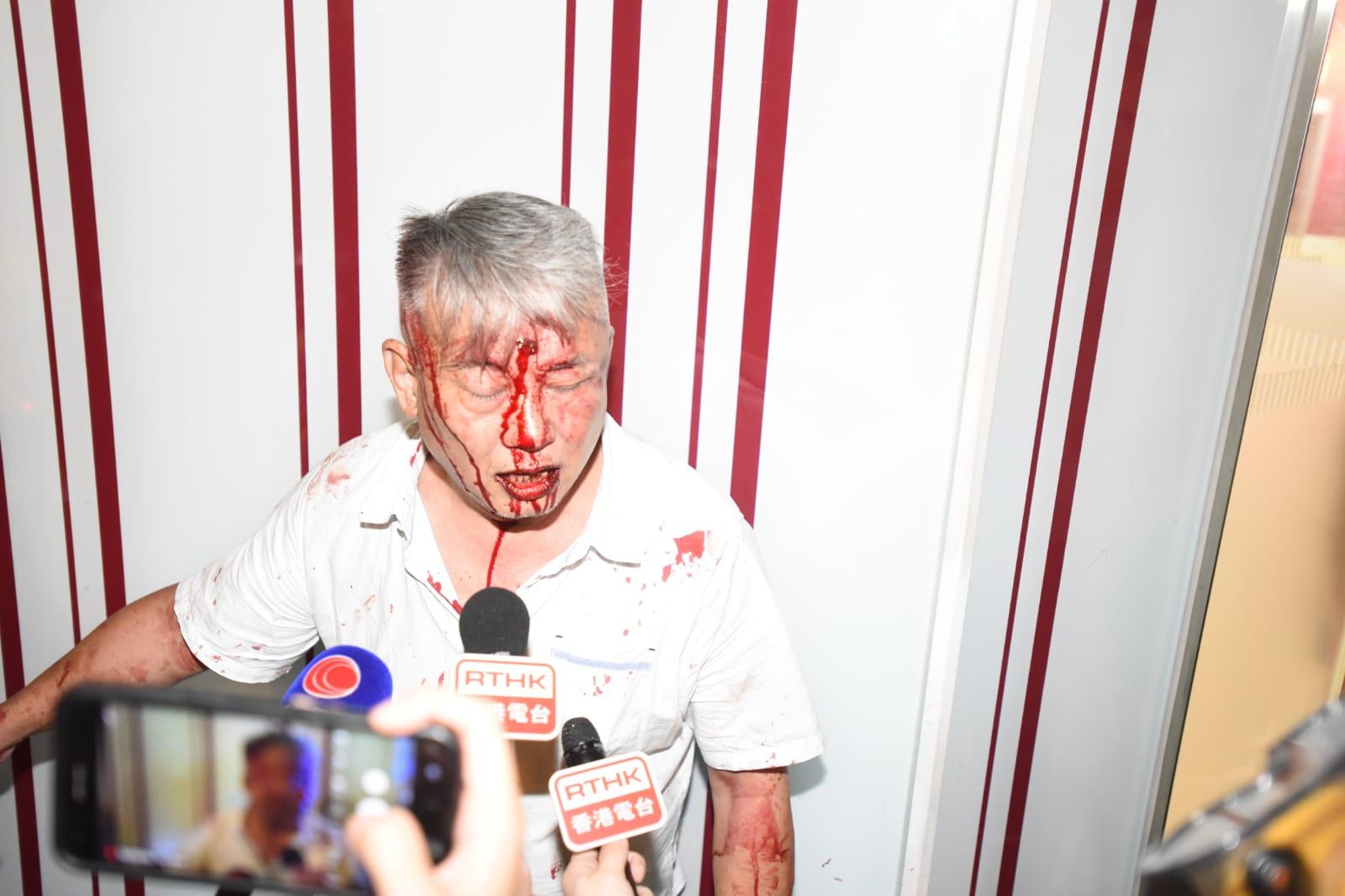 【修例风波】元朗最少3汉遭多人围殴 浴血伤者:打死我啦