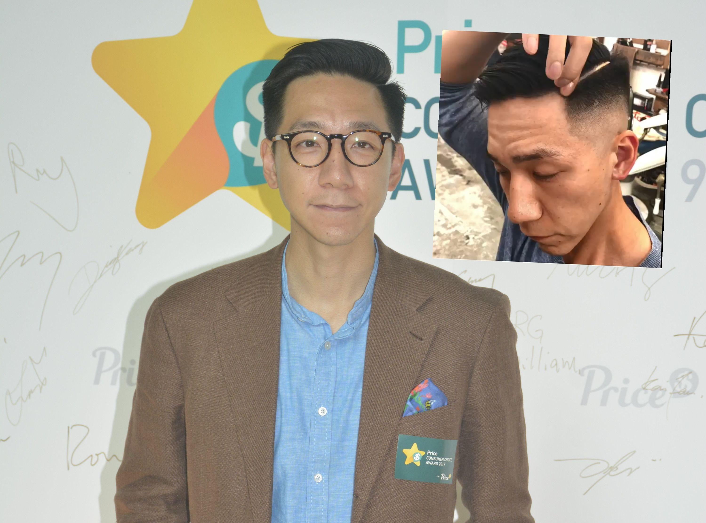 【元朗暴力】剷短头髮展示头部疤痕 柳俊江:伤痕不必遮掩