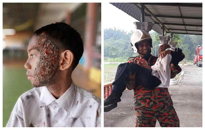 Negri teacher takes fire drill to next level with realistic burn makeup effects