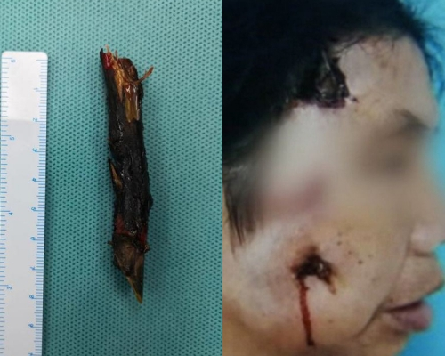 56岁女子面部反覆流脓近两年 医生取出8厘米树枝