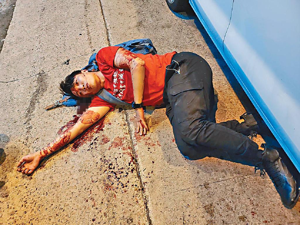【岑子杰遇袭】斥袭击行为野蛮凶残 回教总会:穆斯林与香港人同一阵缐