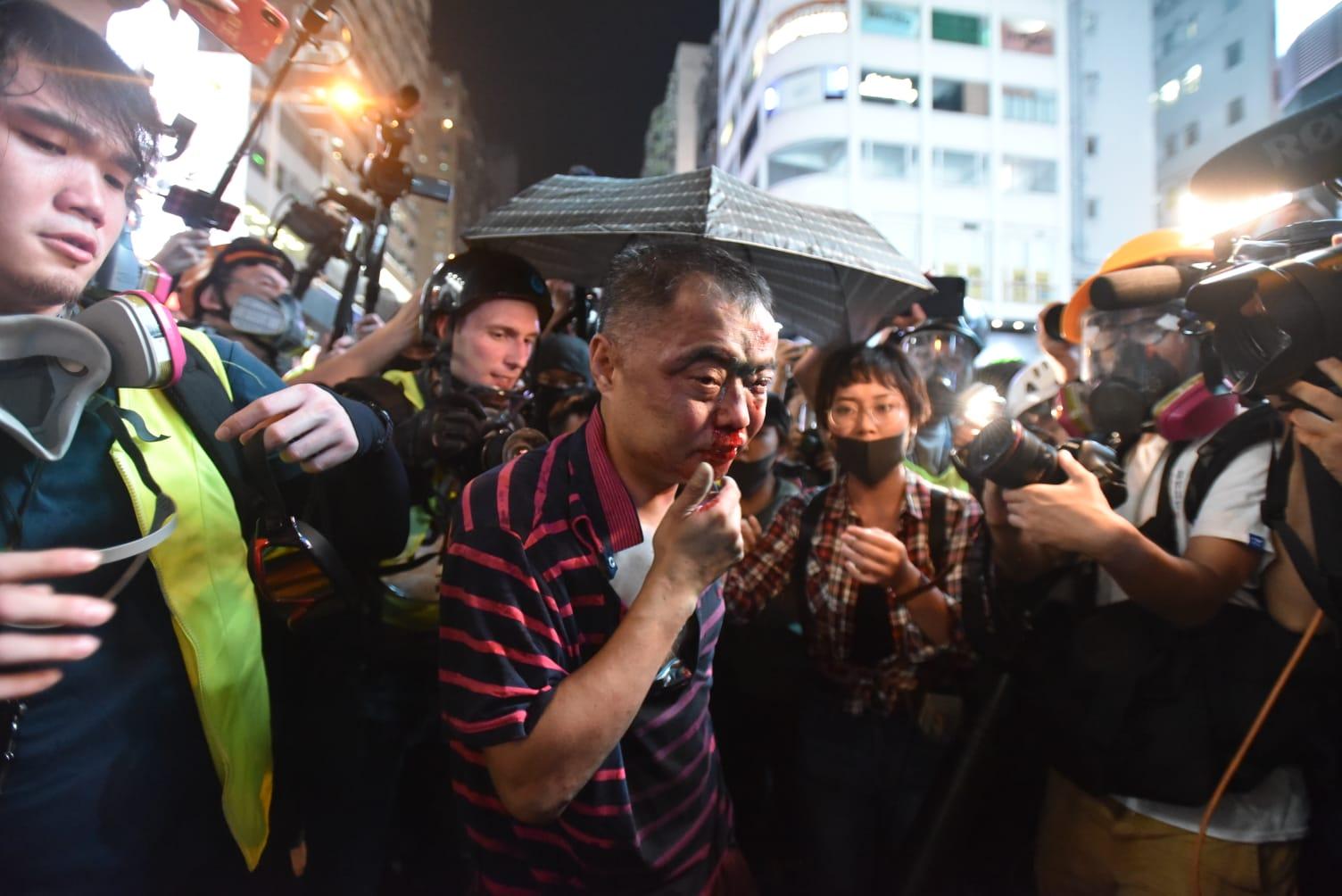 【修例风波】旺角男子遭示威者棍殴飞踢 普通话中年汉被围殴