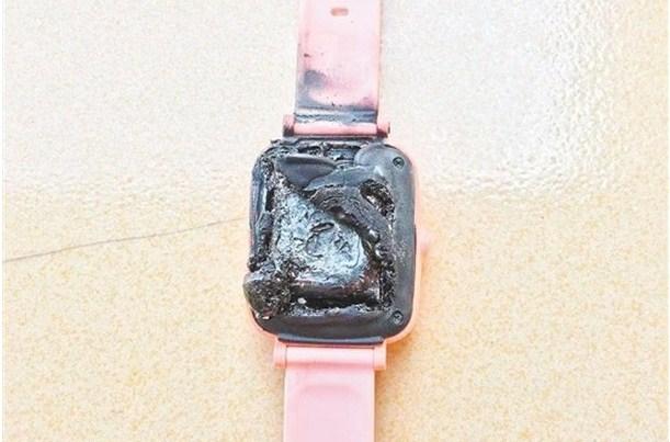 电子手錶突冒烟自燃 小学生手腕烫伤