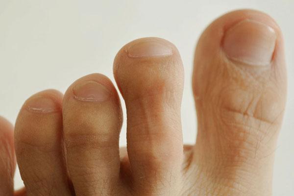 身体好不好,脚知道!脚部出现哪些异常,可能有大麻烦?