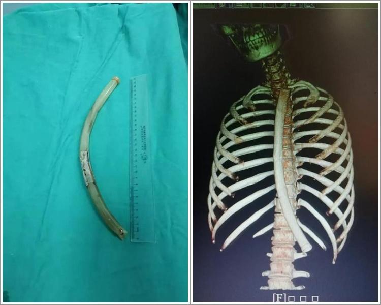 为减肥女子误吞30厘米长催吐管 求诊呃医生是饮管
