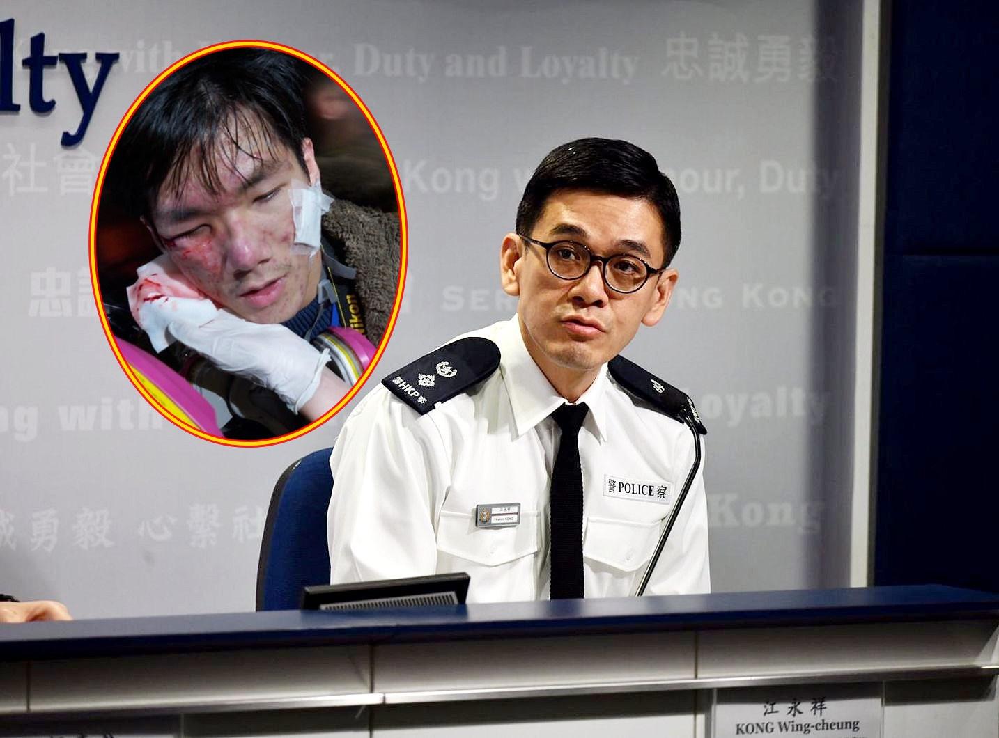 【修例风波】学生记者疑中催泪弹受伤 警:发射方向难免有他人在场