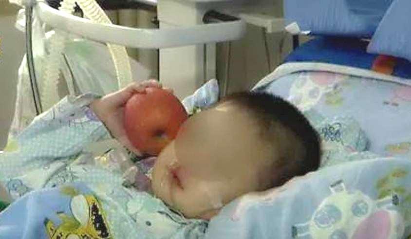 3岁男童发高烧住院20天不退烧 父亲发现竟是体温计坏了