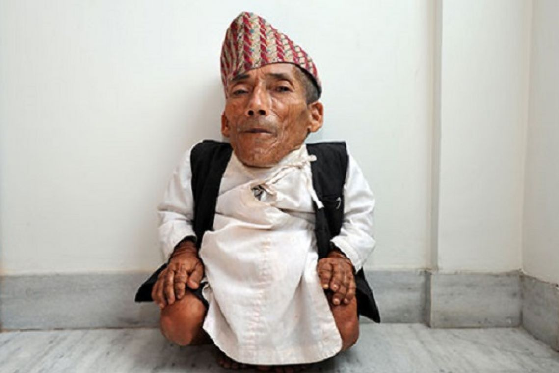World's shortest man dies in Nepal at age 27