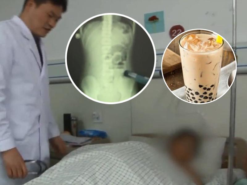少年喝珍珠奶茶不咀嚼 一周吞两杯肠梗塞腹痛入院