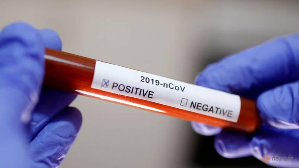 Indonesian health ministry says lab has all needed equipment to detect novel coronavirus