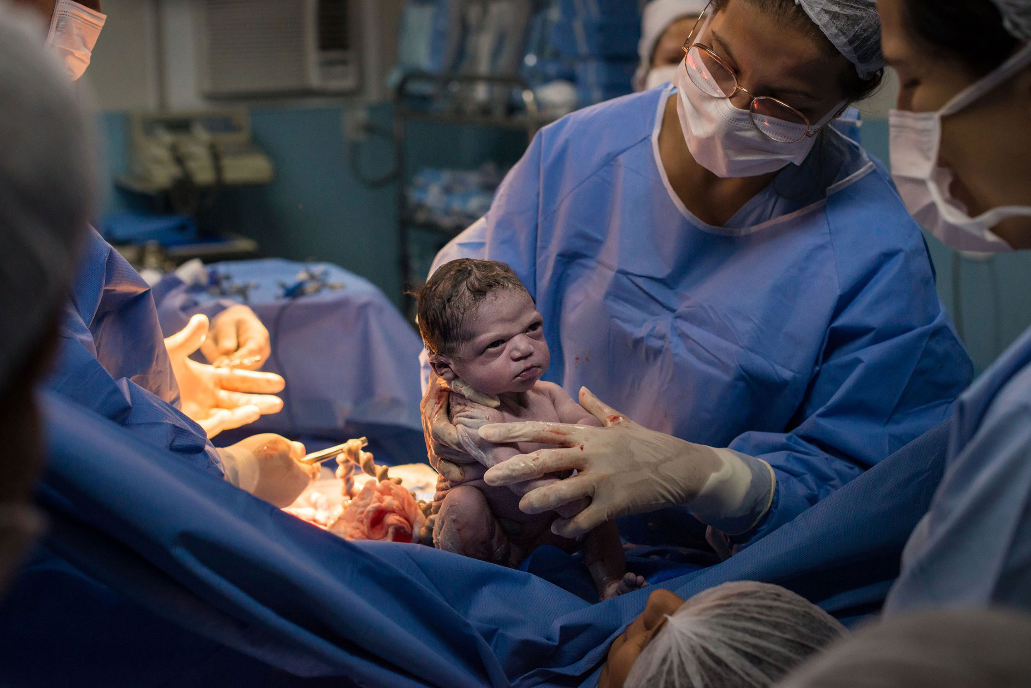 Newborn Baby Goes Viral for Making Hilarious Facial Expression Immediately After C-Section