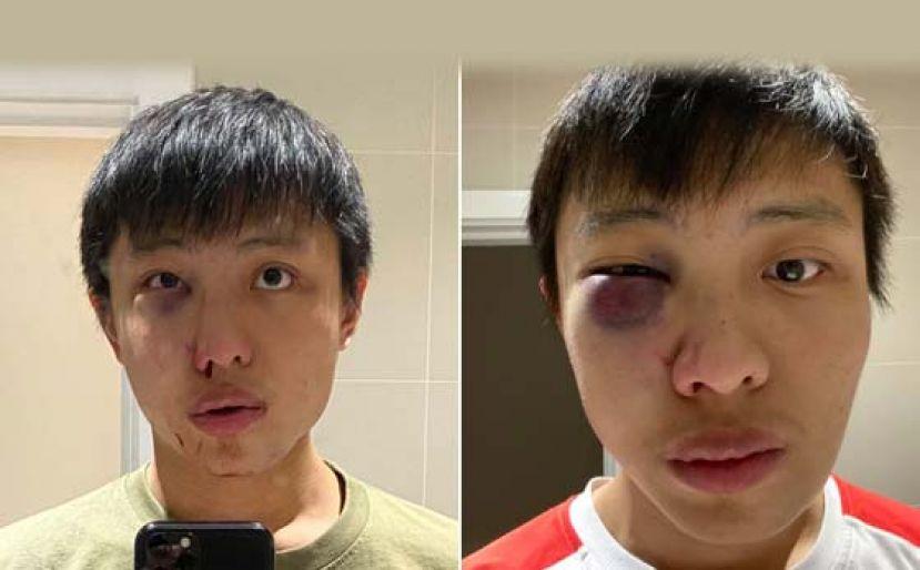 狮城少年疑因疫情受歧视 伦敦街头被围殴致重伤