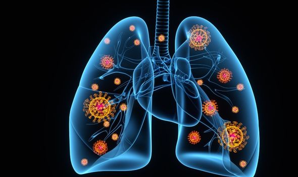 Scans reveal true horror of how coronavirus can seriously damage patients' lungs in days