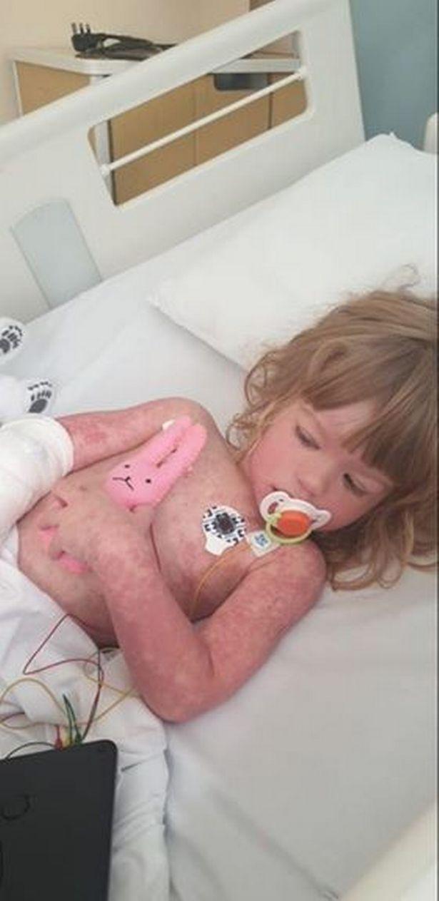 Mum claims girl, 3, had 'terrifying' Kawasaki disease linked to coronavirus a year ago