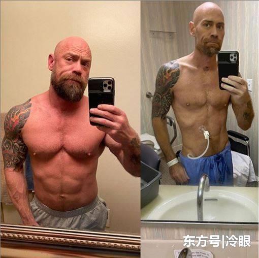 美肌肉男参加派对染疫,历经57天治疗后暴瘦23公斤