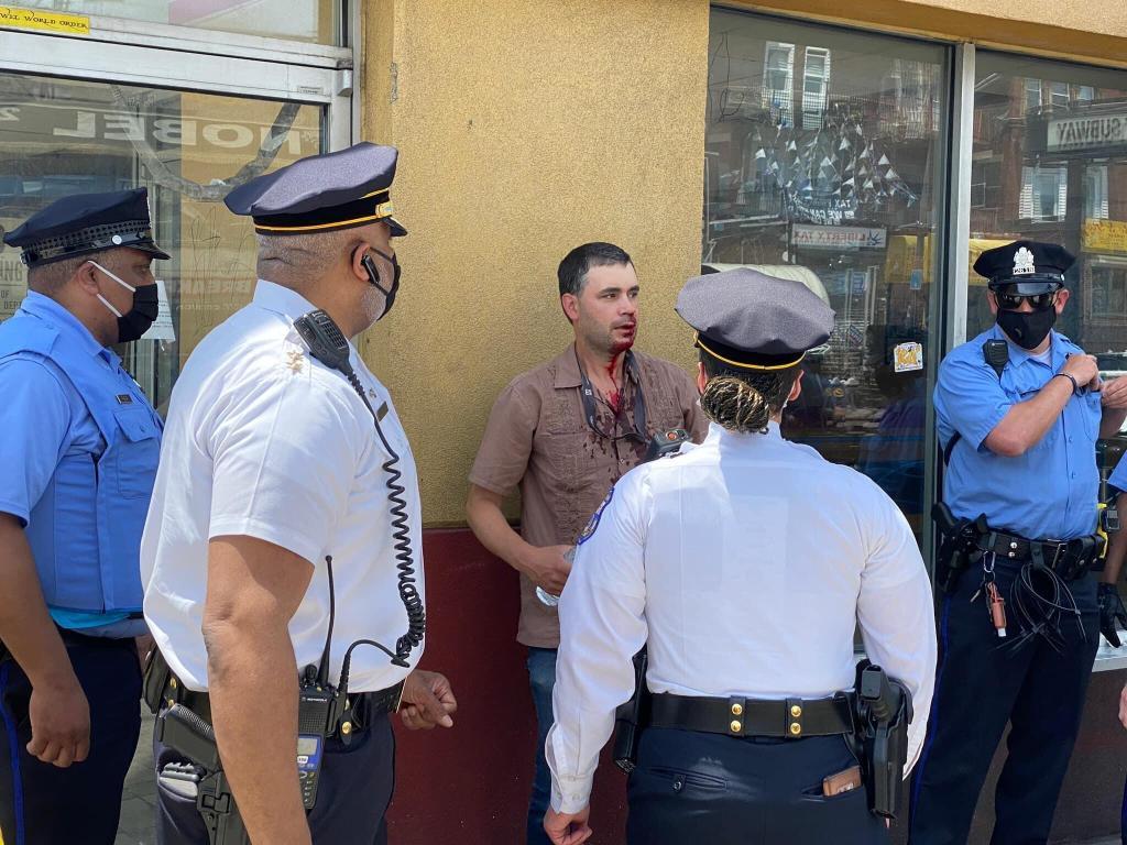 美联社摄影记者费城街头遇袭,脸部出血被送往医院