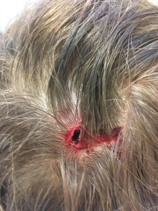 Schoolboy left with huge gash on head after 4ft tall white swan launches at him