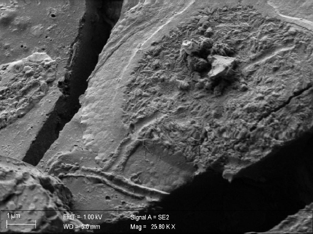 Study finds preserved brain material in Vesuvius victim - The Jakarta Post