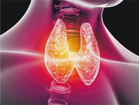 十大癌症丨甲状腺髓质癌 用碘无效 寻精准治疗
