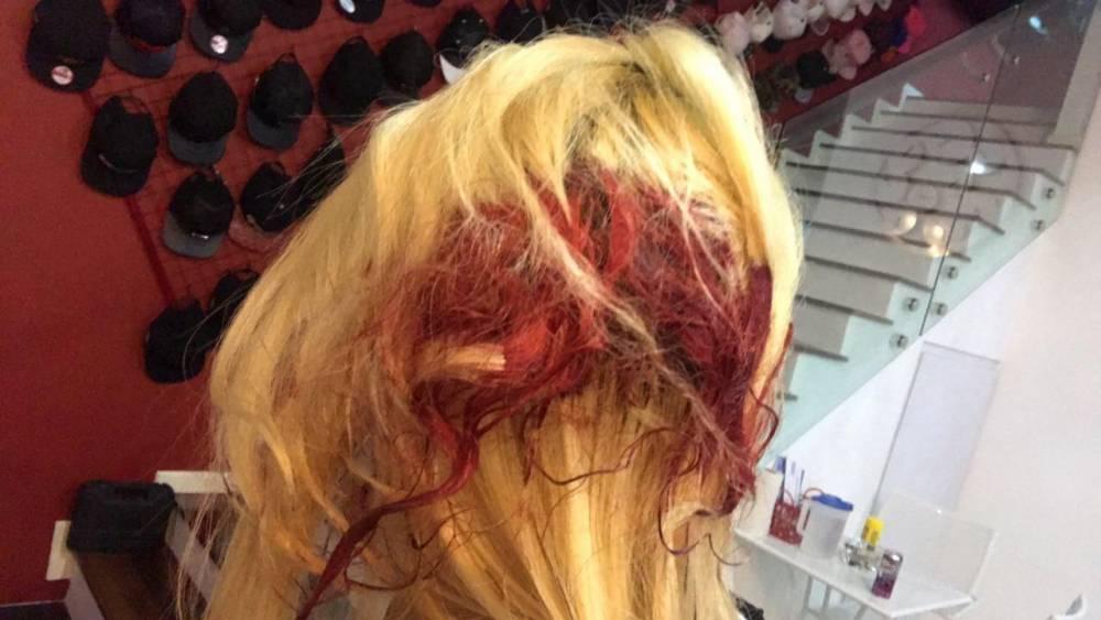 美女2年内被男友打43次!上传被打照片,部位都受重伤!