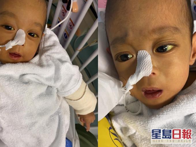 25周早产婴信信白血球上升或因细菌感染 急需换肝续命