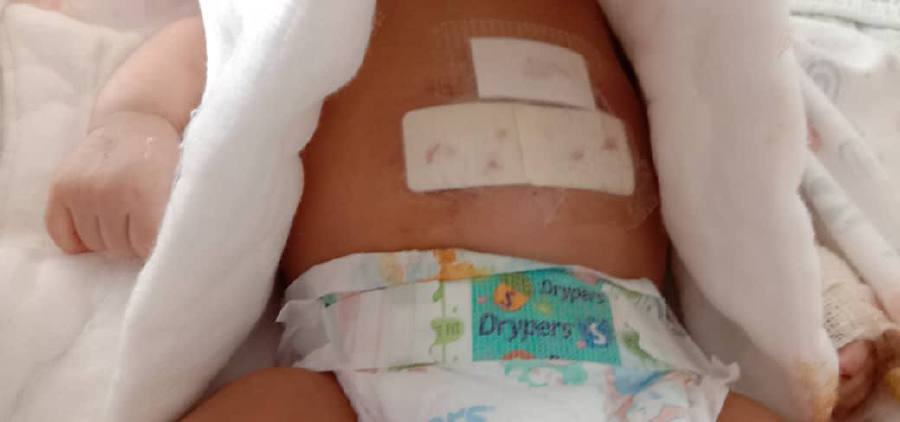 Baby seriously injured in Butterworth monkey attack