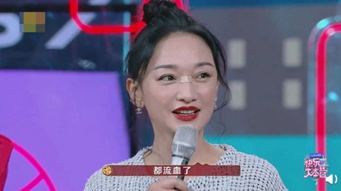 Zhou Xun Has A Cut On Her Nose Bridge 'Cos She Dropped Her Phone On Her Face While Playing With It In Bed
