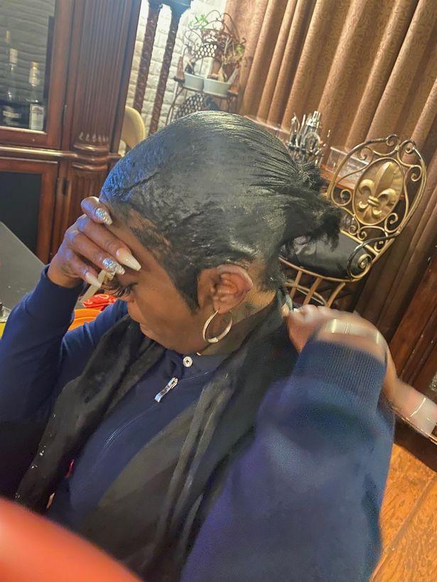 TikTok influencer who put Gorilla Glue in hair cuts off ponytail as scalp 'still burns'