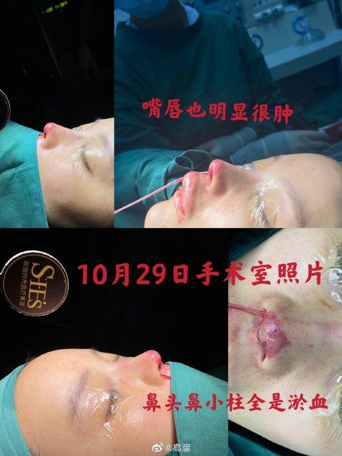 Chinese Actress Gao Liu's Nose Job Went So Horribly Wrong, The Tip Of Her Nose Turned Black