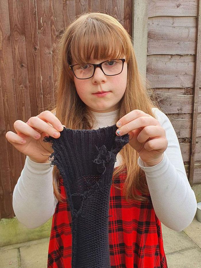 10岁女罹异食癖 卫生纸衣服全吞下肚