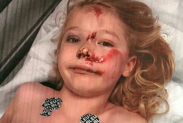Boy, 6, hit by teen on scooter suffers fractured skull and is 'scared of his reflection'