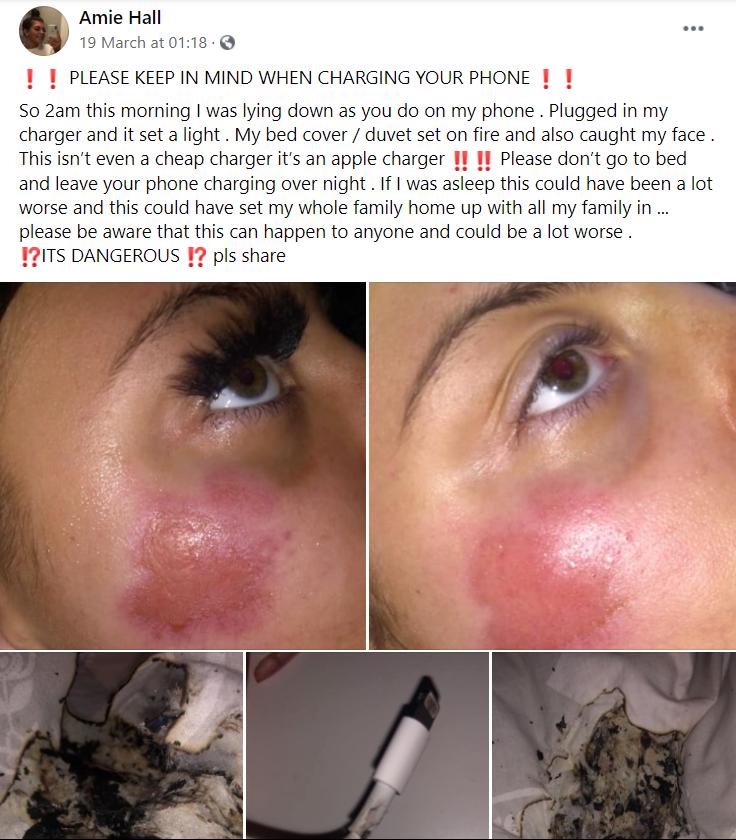 iPhone床边充电中突起火 英17岁少女烧伤毁容