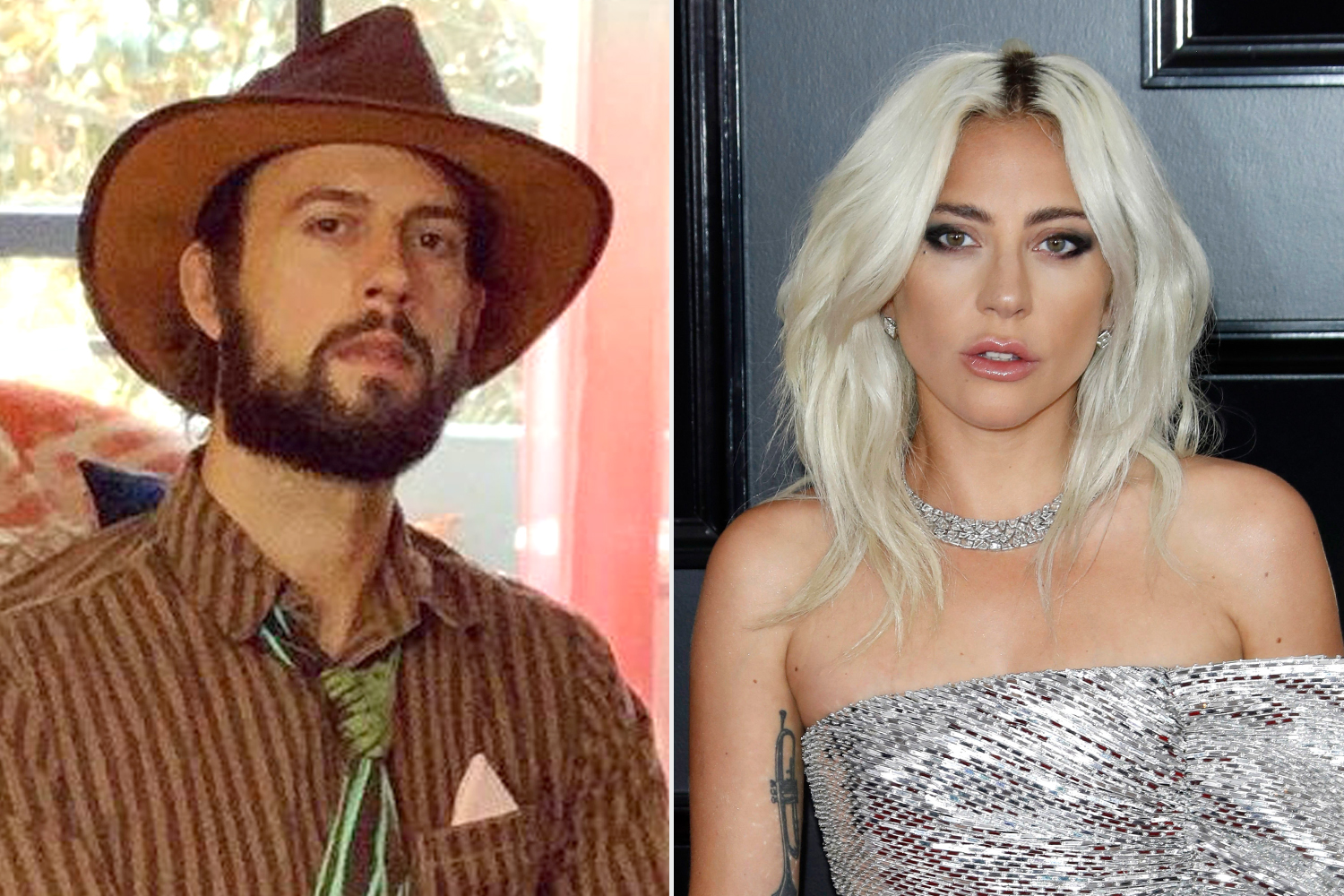 Lady Gaga's Dog Walker Ryan Fischer Reveals His Lung Collapsed Several Times After Shooting