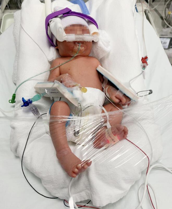 早产婴须住加护病房 大马夫妇获千人伸援手