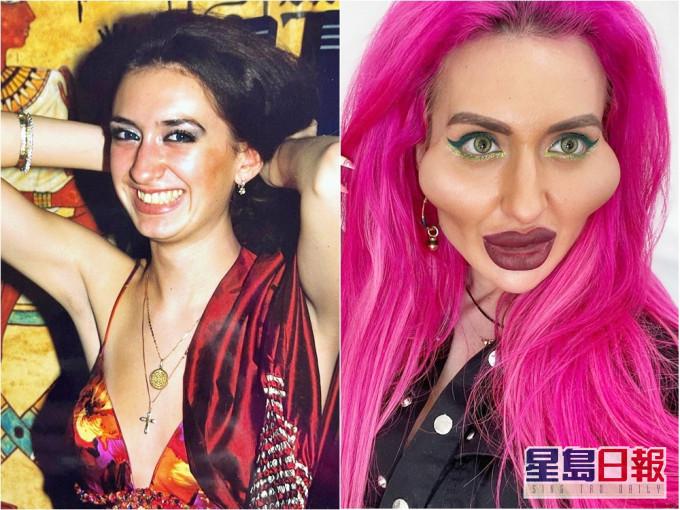 女网红整容变「世界最大脸颊」 过往素颜照曝光网民吃惊