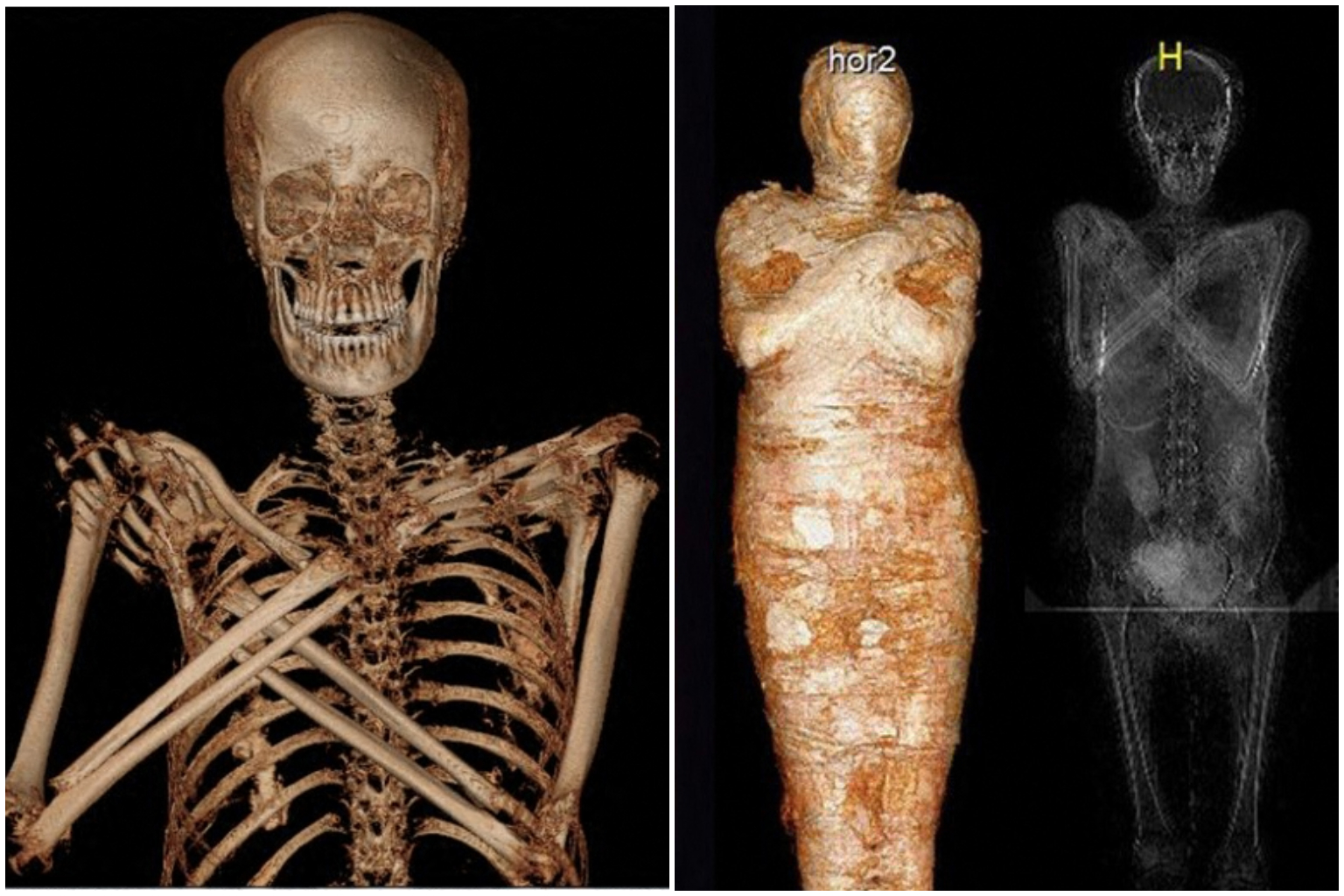 Mummy-to-be: Pregnant embalmed body identified in Poland